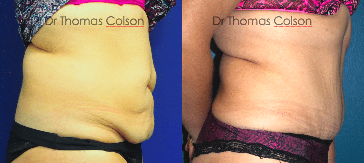 Avant apr s abdominoplastie colson aix marseille salon 2 for Clinique vignoli salon