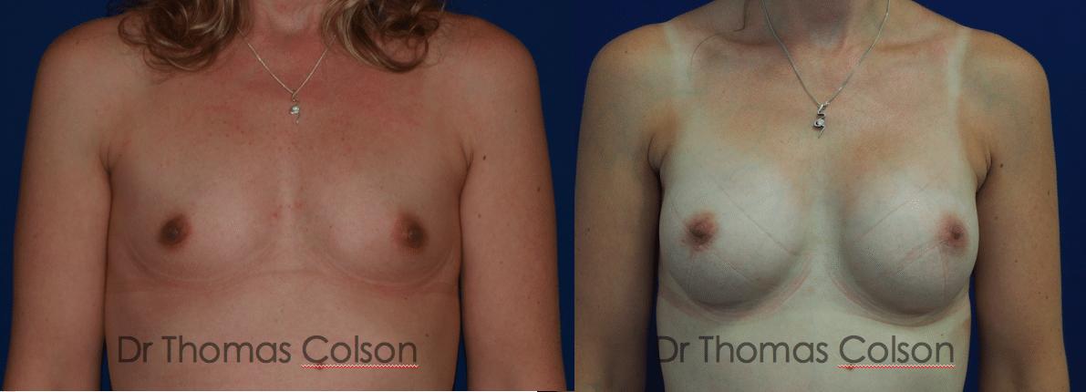 Prothèses mammaires anatomiques sous mammaire retropectorales 350cc