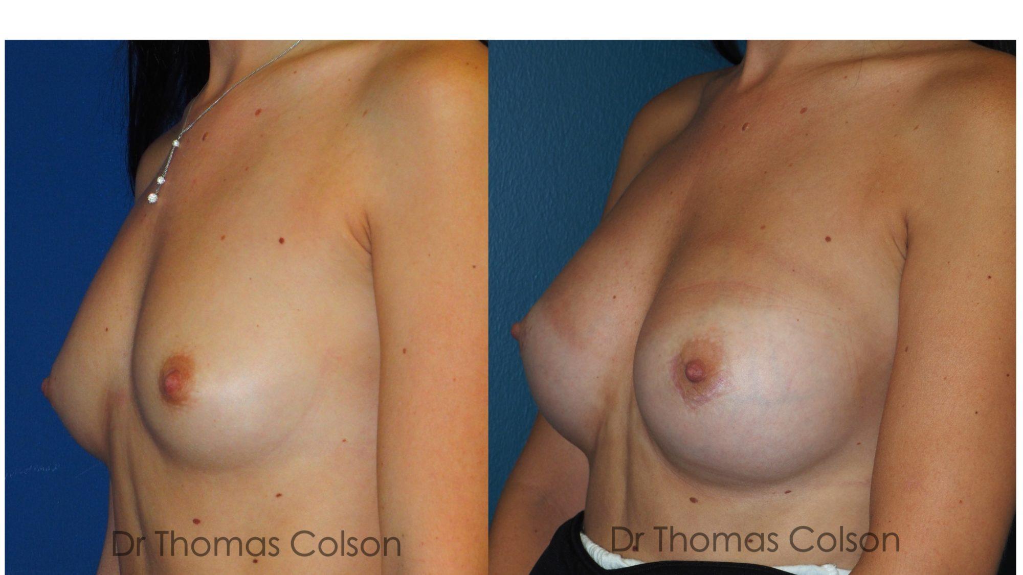 Prothèses mammaires anatomiques 350cc
