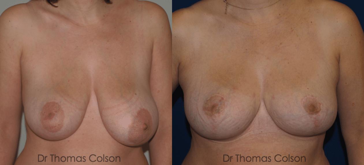 Réduction mammaire et correction d'une asymétrie