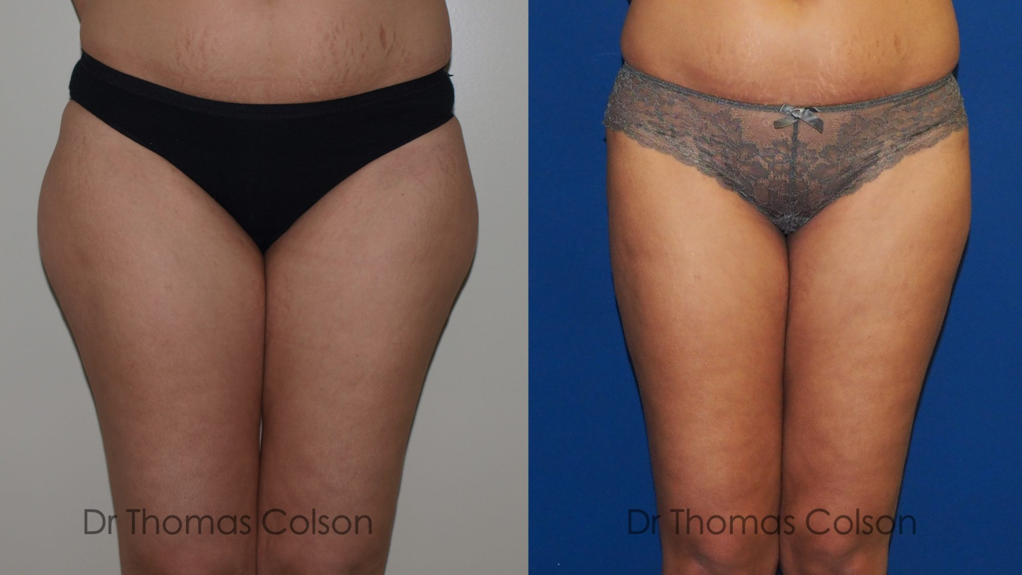 Liposuccion face externe de cuisse