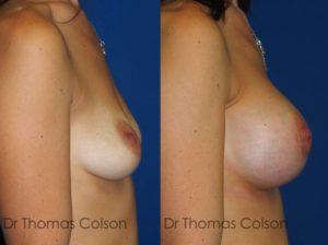 Prothèses mammaires anatomiques 295cc péri-aréolaire retro-pectorale