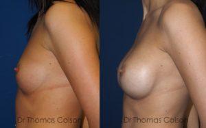 Prothèses mammaires anatomiques périaréolaires retropectorales 280cc