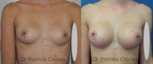 Prothèses mammaires anatomiques sous-mammaire 305cc retropectorales