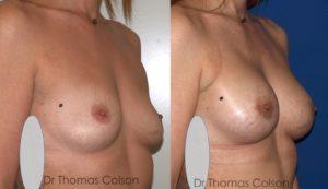 Prothèses mammaires periareolaire retropectorales anatomiques 330cc