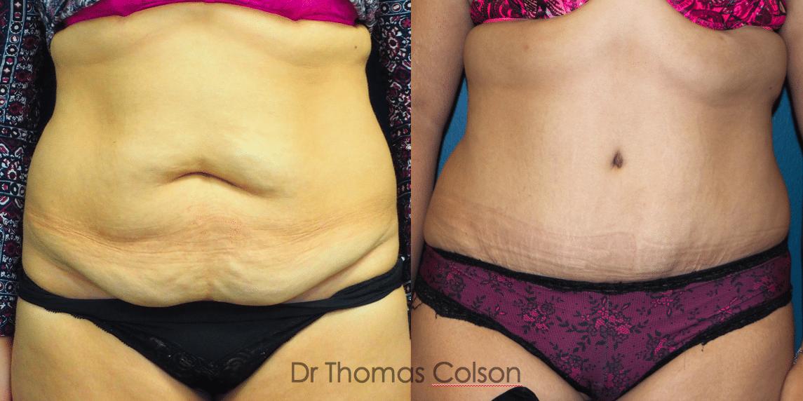 Abdominoplastie - Avant-Après