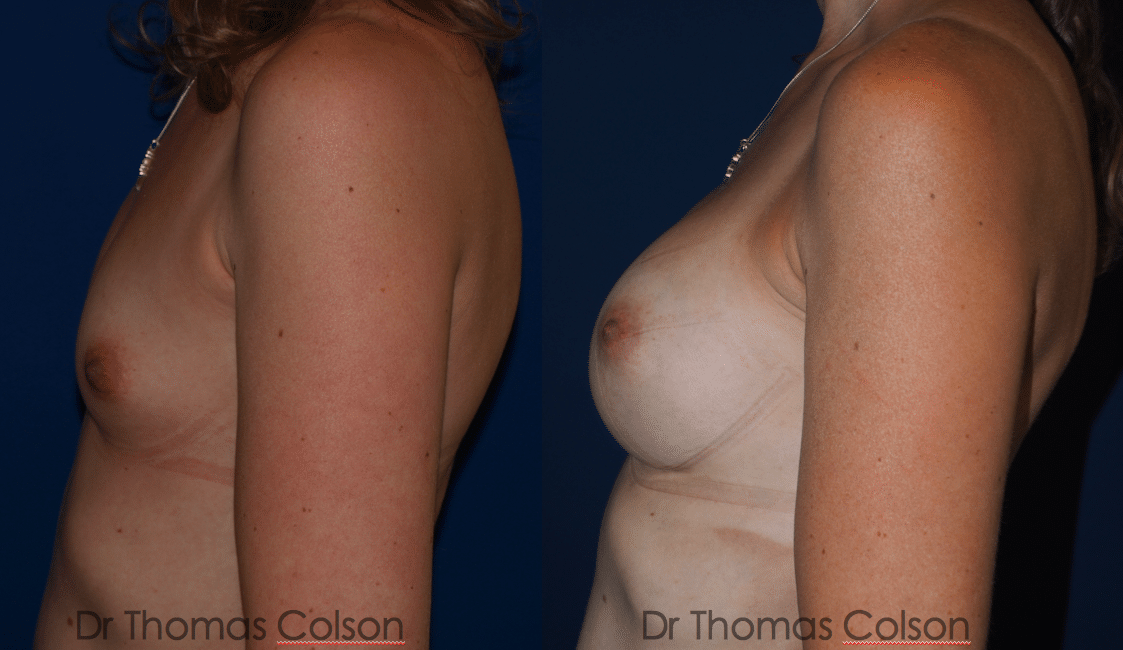 Prothèses mammaires anatomiques sous mammaires retropectorales 350cc