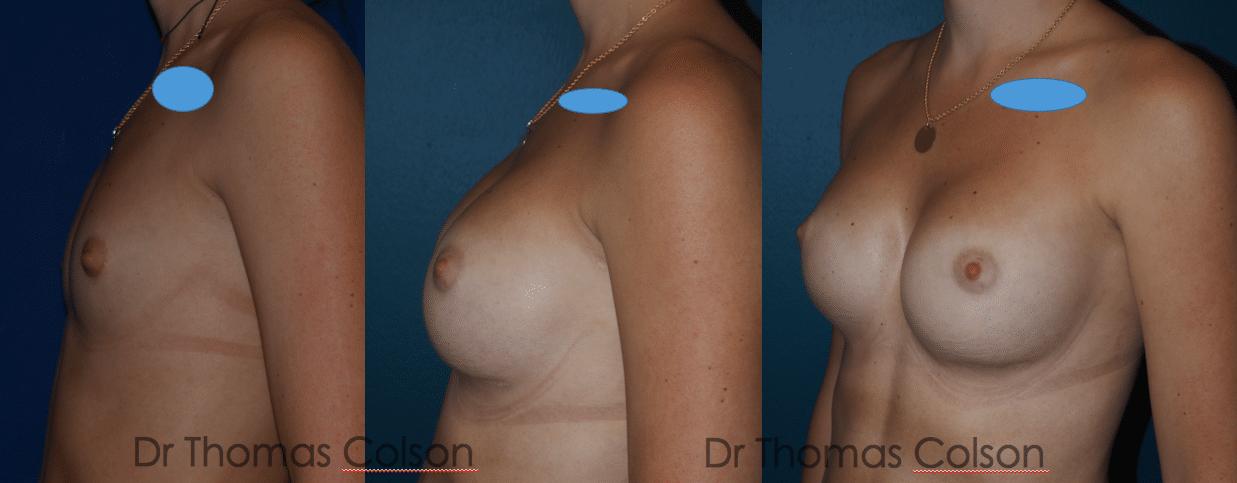 Prothèses mammaires anatomiques sous mammaire rétropectorales 350cc