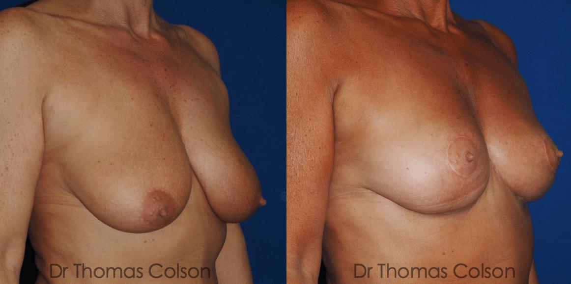 Lifting mammaire ou mastopexie ou cure de ptose