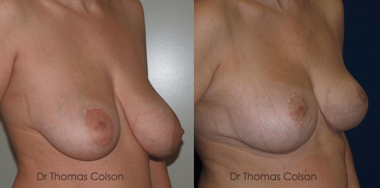 Réduction mammaire et Correction du asymétrie