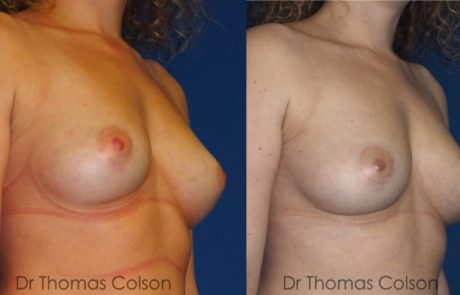 Lipofilling mammaire poitrine 2