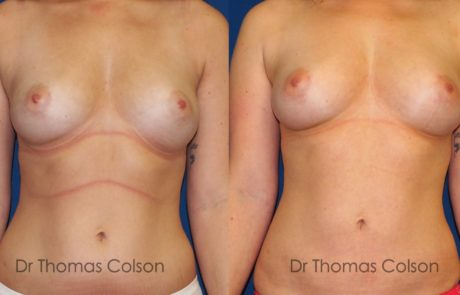 Lipofilling mammaire poitrine