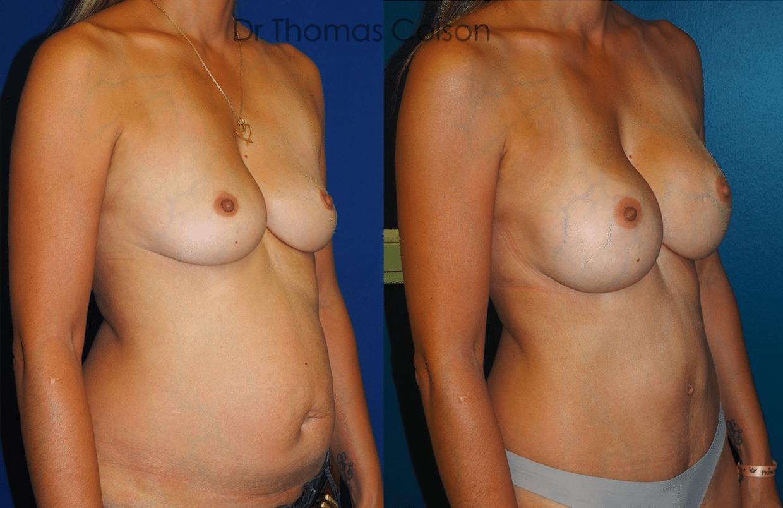 Prothèses mammaires rondes sous mammaire pré-pectorales + abdominoplastie