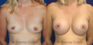 Prothèses mammaires anatomiques 440cc sous-mammaire prépectorales