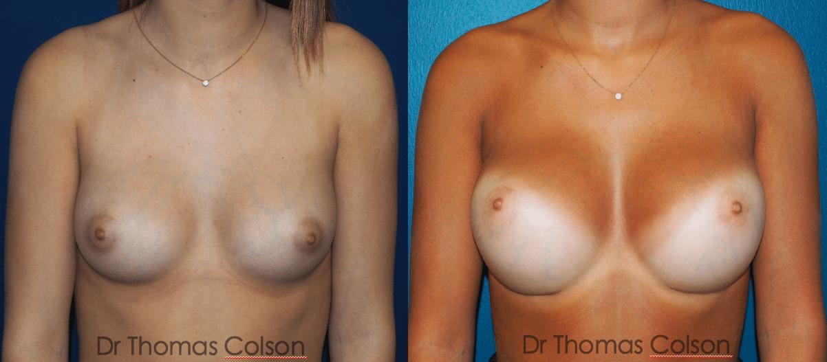 Prothèses mammaires rondes sous mammaire retropectorales 300cc