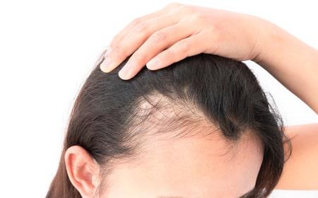 Greffe de cheveux Aix-en-Provence