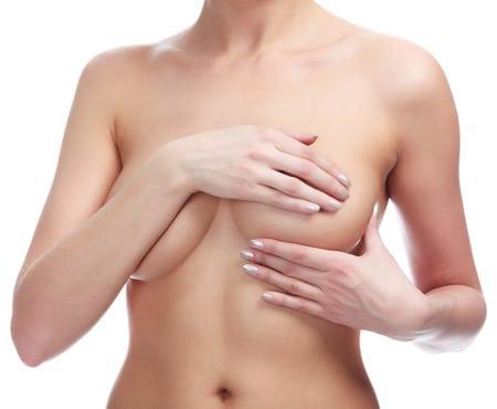 Lifting mammaire ou mastopexie (cure de ptose) avec prothèses Aix-en-Provence