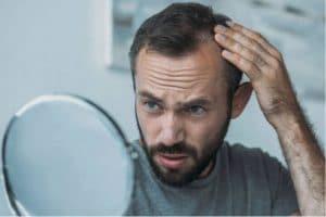 La greffe de cheveux à Marseille pour traiter la calvitie