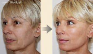 Résultats lifting du visage avec fil tenseur